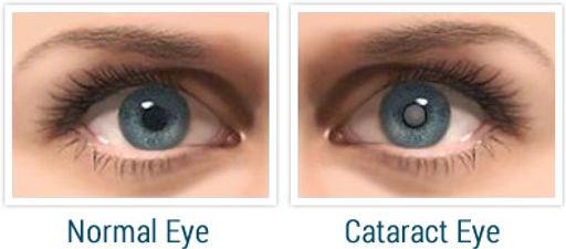 normal_cataract_eye.jpg
