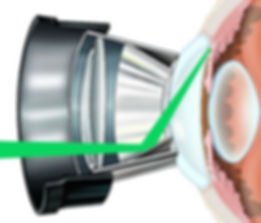 slective-laser-trabeculoplasty-300x256.j