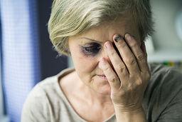 graphicstock-senior-woman-with-black-eye
