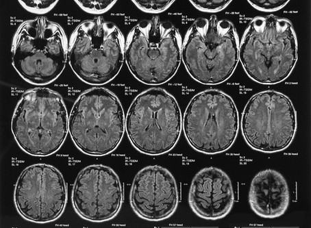 WHAT DO YOU KNOW ABOUT THE ROLE OF OXIDATIVE STRESS IN BRAIN DISEASES AND OTHER ORGANS?