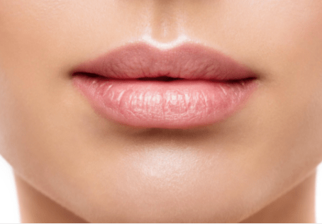 """The TRUTH about LIP FILLER – Get the perfect """"Cupid"""" Lip"""