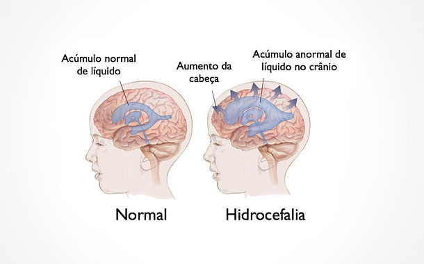 Dr. Eloy Rusafa - Hidrocefalia