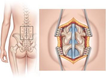 Artrodese da Coluna Lombar