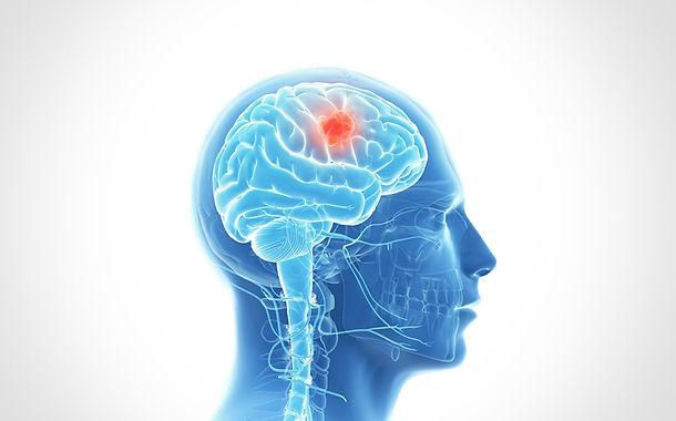 Dr. Eloy Rusafa - Tumor Cerebral