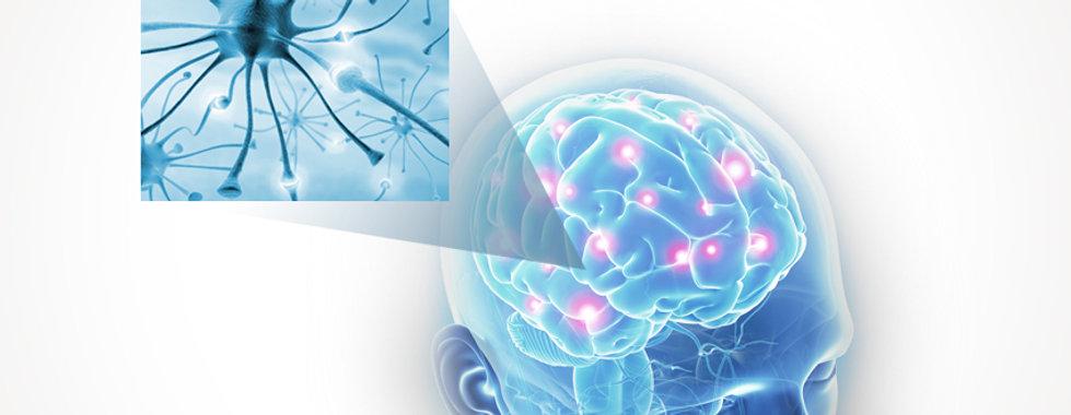 Dr. Eloy Rusafa - Epilepsia