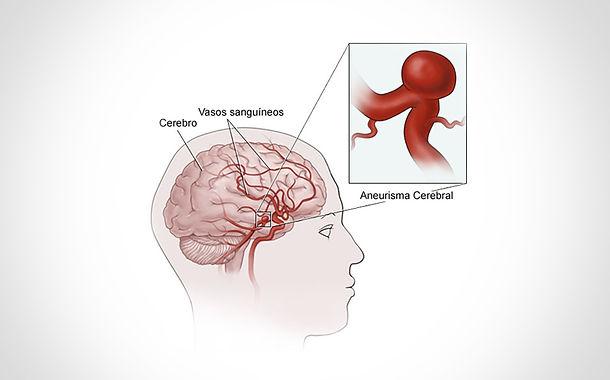 Dr. Eloy Rusafa - Aneurisma Cerebral
