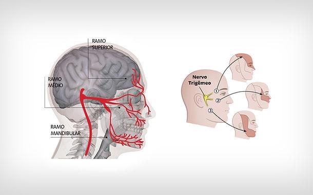 Dr. Eloy Rusafa - Neuralgia do Trigêmeo