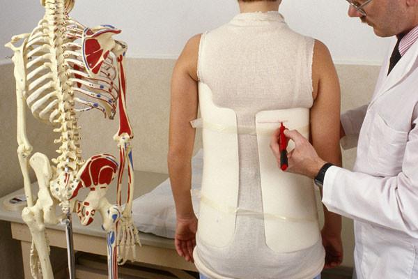 Uso de colete ortopédico na escoliose do adolescente: Principais dúvidas