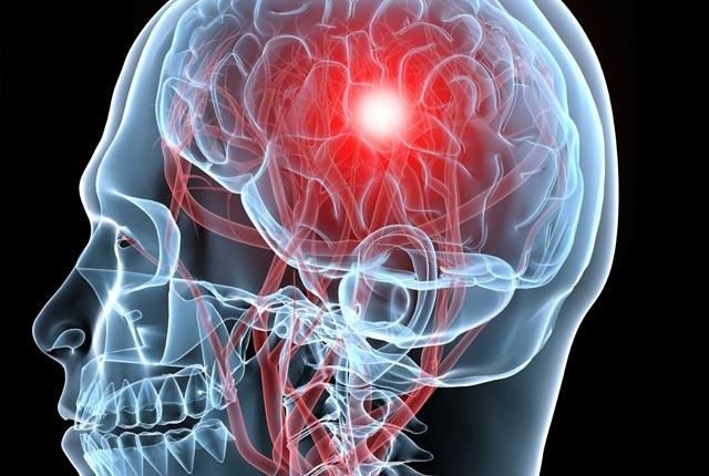 O que é um aneurisma cerebral?