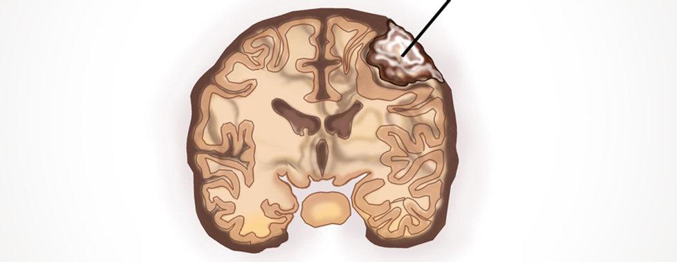 Dr. Eloy Rusafa - Meningioma Cerebral