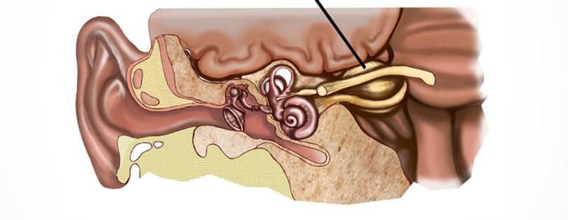 Dr. Eloy Rusafa - Neurinoma do Acústico