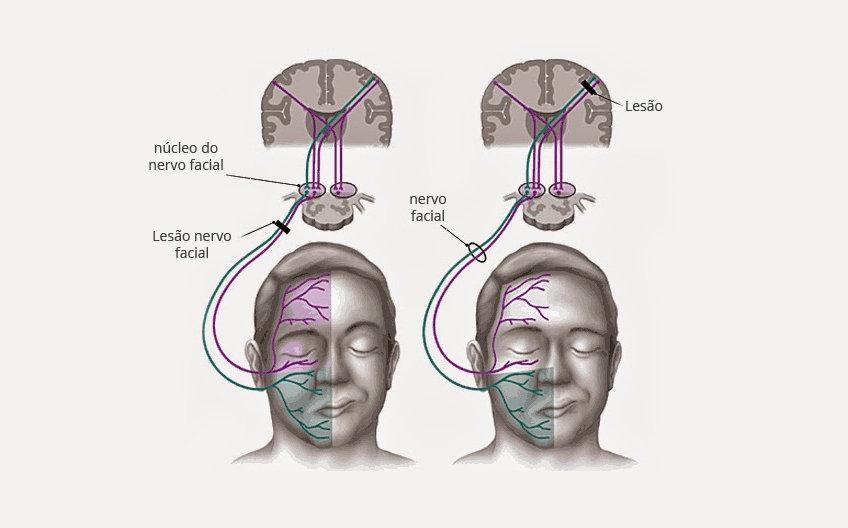Dr. Eloy Rusafa - Sindrome do espasmo Hemifacial