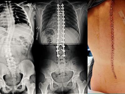 Cirurgia de escoliose: Pré-operatório, Pós-operatório e Recuperação