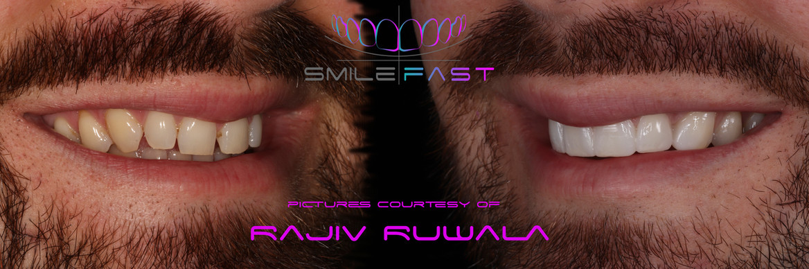 SmileFast.jpg.jpg
