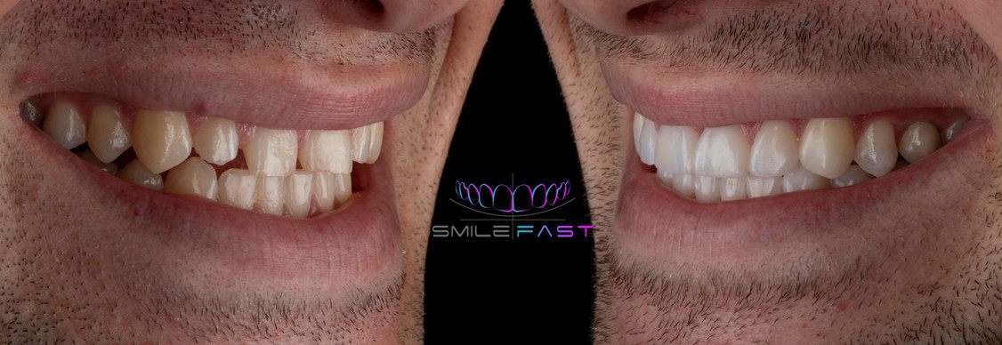 SmileFast.jpg