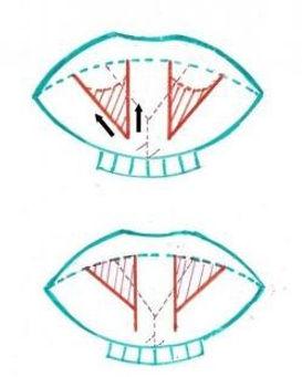 Zvětšení rtů kresba 2
