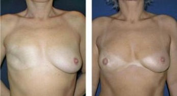 Rekonstrukce prsou po nádorovém onemocnění