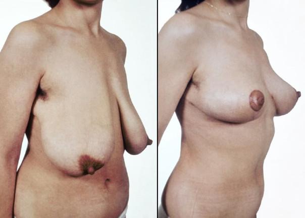 Redukce prsou 4.jpg