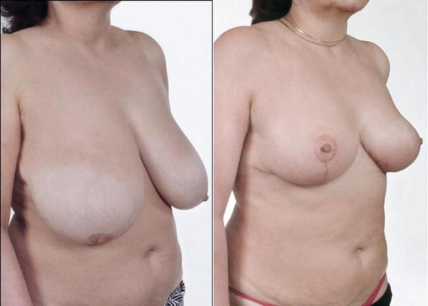 Redukce prsou 1.jpg