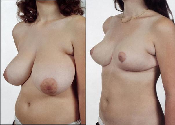 Redukce prsou 3.jpg