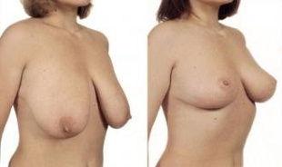 Redukce prsou