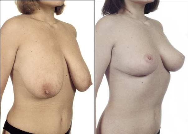 Redukce prsou 2.jpg