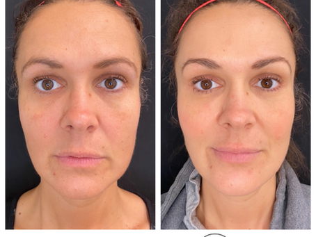 Cosmetic Injectables: A Spiritual Journey