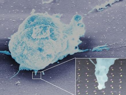 Nieuwe AI nanochip onthult hoe immuunsysteem omgaat met kanker