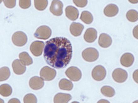 Witte bloedcellen kunnen worden gebruikt om de immunotherapie tegen kanker te stimuleren
