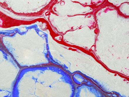 Doorbraak Israëlische onderzoekers: Bio-geprinte bloedvaten nu mogelijk voor lichaamsimplantaten