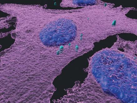 Mogelijke doorbraak in immunotherapie door nieuwe Israëlische kankerstudie