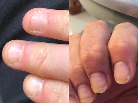 An extra tip! Nail biters have hope