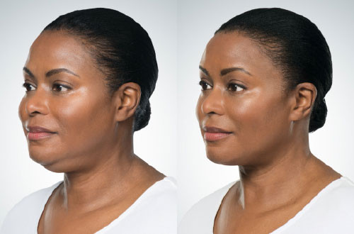 Kybella_Women_Oblique_Left_5.jpg