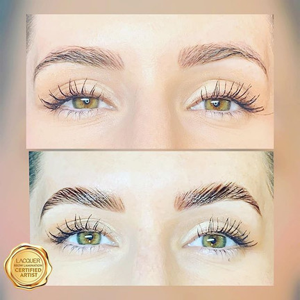 Yes you can get brow lifted when you hav