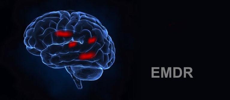 EMDR brain.jpg