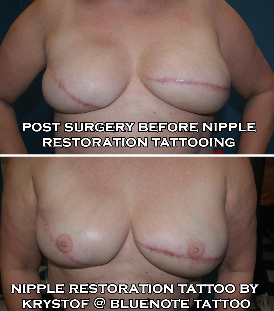 Nipple Restoration 1