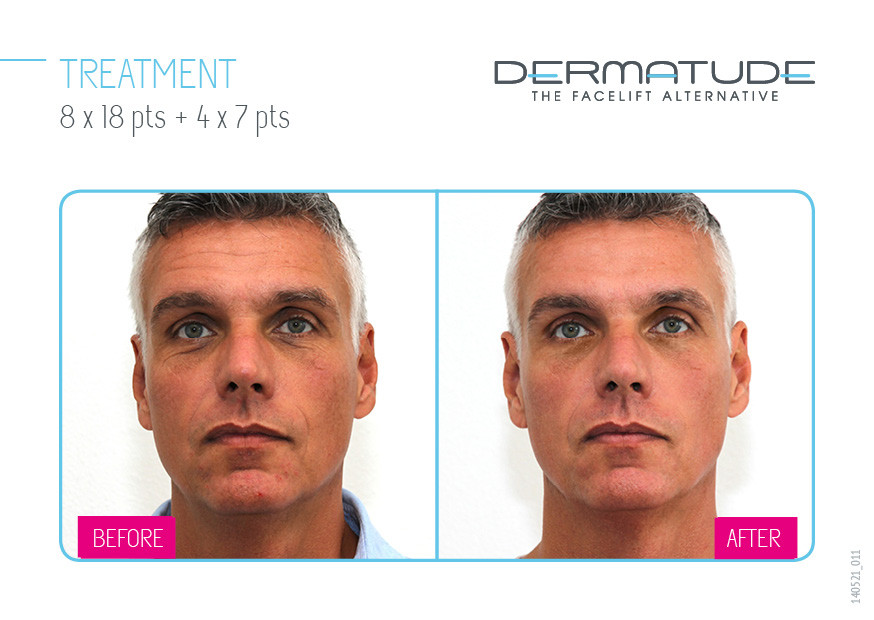Poema Skincare Men's Facials Dermatude