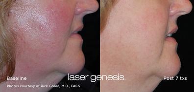 Cutera Laser Genesis.png
