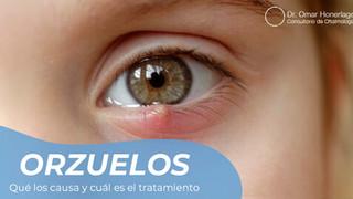 Orzuelos y Chalaziones
