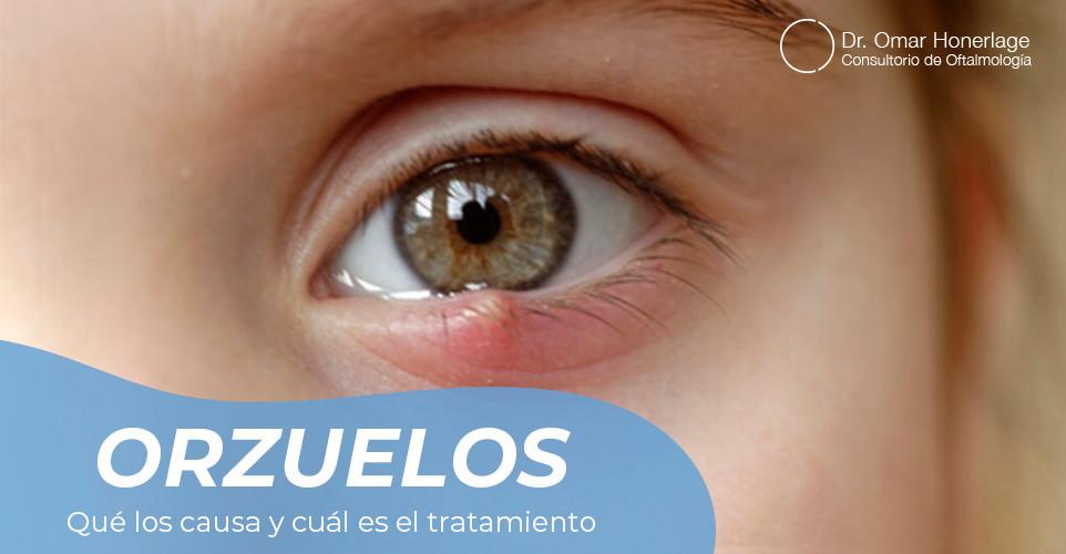 oftalmologo en cancun - tratamiento de orzuelos y perrillas