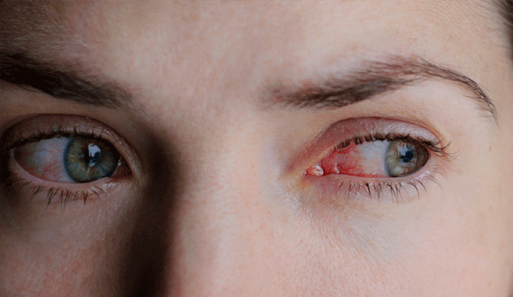 oftalmologo en cancun dr omar honerlage