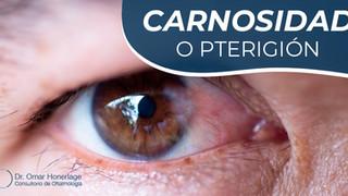 Pterigión (carnosidad)