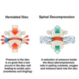 Spinal_Decompression2.jpg