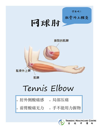 网球肘- Tennis Elbow, or lateral epicondylitis