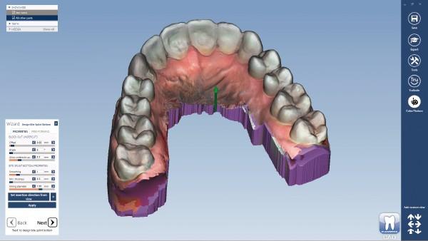 Intraoral Scanning at AG Dental