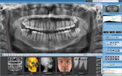 Dental Xray at AG Dental