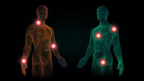 Acupuncture et système musculosquelettique