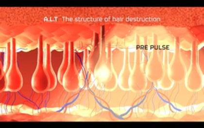 предварительный пульс ALT.jpg