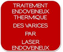 2_Visuel_Veines_Traitement_varices_Laser