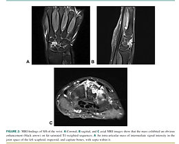 Answer - What is the differential diagnosis for this condition? - Wrist ganglion